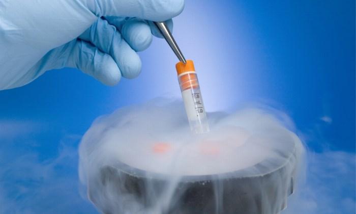 congelación de óvulos - aluz